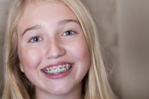 A girl with braces.