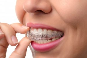 Align your teeth with discretion with Invisalign in Highland Village.