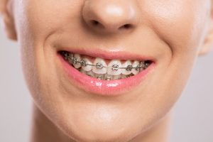 Orthodontics in Highland Village are about more than just looks – braces also make your entire smile healthier.