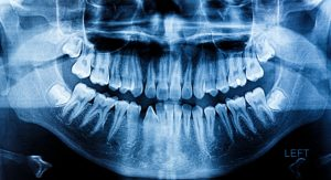 Here's what you can expect from wisdom teeth extractions in Highland Village.